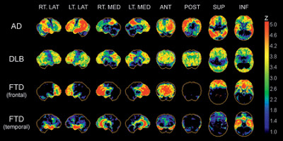 FTD Research Dementia Brain Scan